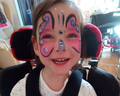 Anastasia after treatment, smiling and wearing facepaint.